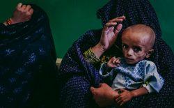 دلیل گرسنگی کودکان ما چیست؟