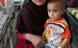 دو میلیون کودک زیر پنج سال در افغانستان دچار سوء تغذیه جدی استند
