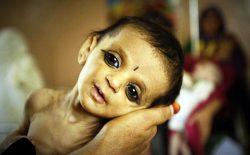کودکان افغانستان در معرض خطر سوءتغذیه