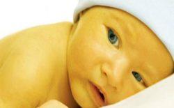 بیماری زردی در کودکان و درمان آن
