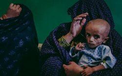 وزارت صحت: ۴۱ درصد کودکان زیر پنج سال به سوءتغذیهی مزمن یا قدکوتاهی مبتلا اند
