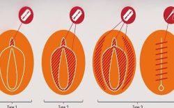 یونیسف: همهگیری ویروس کرونا سبب افزایش موارد ختنهی زنان در جهان میشود