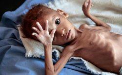 سازمان ملل: نیمی از کودکان یمنی از سوءتغذیه رنج میبرند